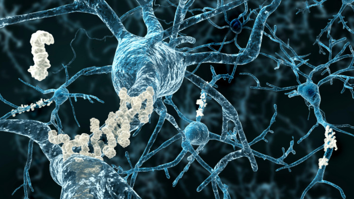 Amyloid plaques on axons of neurons affected by Alzheimer's disease