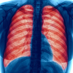 lung infection,copd