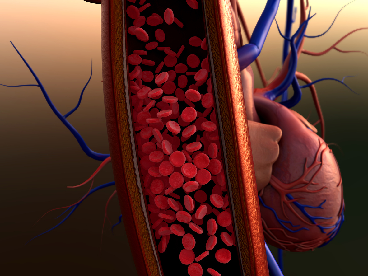 Achieving an Earlier Diagnosis in Pulmonary Arterial..