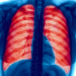 Identifying Patients with Non-Tuberculous Mycobacterial Lung Disease for Optimal Treatment Decisions