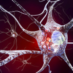 Utilizing Advanced Science to Improve the Quality of Life in Patients with Parkinson's Disease