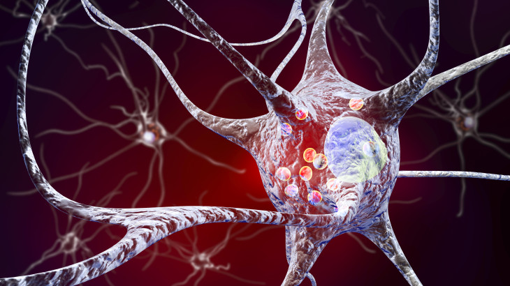 Parkinson's disease. 3D illustration showing neurons containing Lewy bodies small red spheres which are deposits of proteins accumulated in brain cells that cause their progressive degeneration