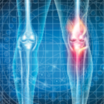 The Advances in Monoclonal Antibody Therapeutics to Improve Outcomes in Patients With Psoriatic Arthritis and Ankylosing Spondylitis