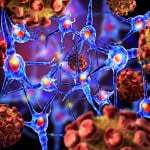 Antisense Therapeutics for the Optimal Treatment of Patients with Spinal Muscular Atrophy
