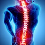 Individualizing Treatment Strategies for the Management of Osteoporosis