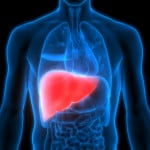 Advances in Diagnosing and Treating Non-Alcoholic Steatohepatitis (NASH)