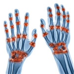 Updates on Therapeutic Strategies to Optimize Clinical Outcomes in Psoriatic Arthritis