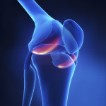 Utilizing Individualized Treatment Plans to Reduce Disease Activity and Pain Levels in Patients With Rheumatoid Arthritis
