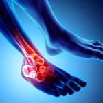Advances in the Management of Gout