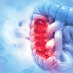 Colorectal Cancer Update: Prevalence, Screening, Biomarker and Genomic Testing, and Therapeutic Targets