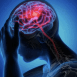 Difficult-to-Treat Migraine: Recent Developments and Management