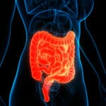Applying S1P Therapeutics to Improve Outcomes for Patients with Moderate to Severe Ulcerative Colitis
